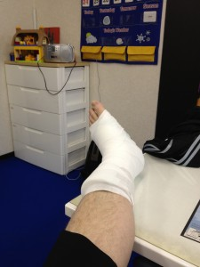 ankle cast